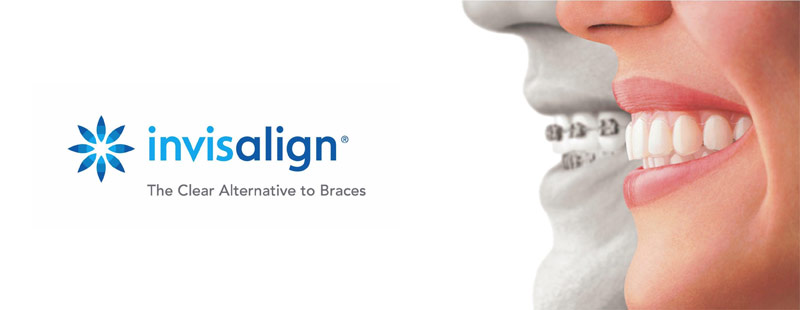 Invisalign Clear Braces for Teeth
