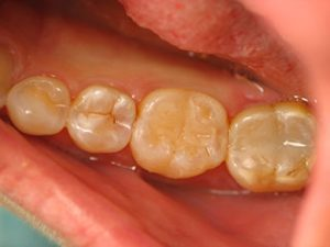 Bonded Tooth Colored Fillings for Teeth