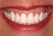 Professional Teeth Whitening Zoom