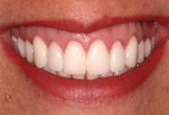 Professional Teeth Whitening Zoom